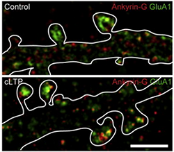 Ankyrin-G accumulates in dendritic spines when the spines enlarge (bottom), compared to control (top), shown using a new super-resolution imaging method. Ankyrin-G is a protein encoded by ANK3, a gene closely associated with bipolar disorder risk.